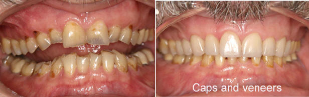 Bonding And Veneers In Lakewood Ranch Can Help Give You The Perfect Smile